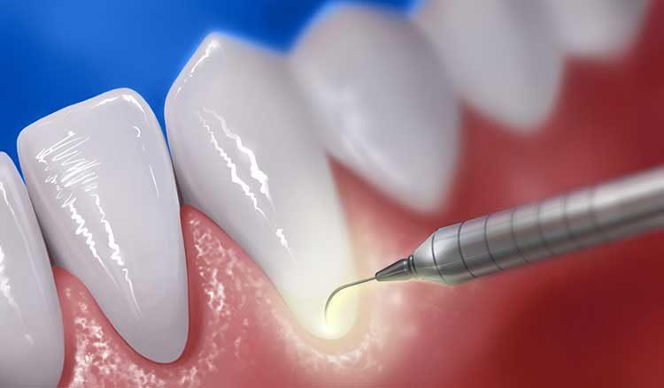 odontoiatria-conservativa-catania